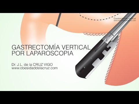 Explicación Gastrectomía Vertical