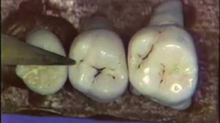 Dental Anatomy: Maxillary Molars