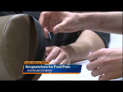 Acupuncture for foot pain - Medical Minute