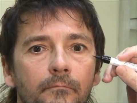Rejuvenecimiento de párpados sin cicatrices visibles