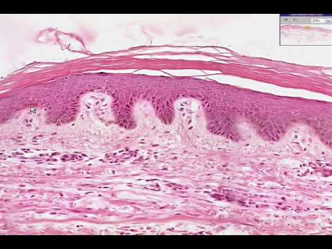 Shotgun Histology Thin Skin Youtube