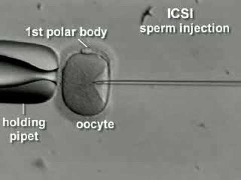IVF & ICSI brief overview