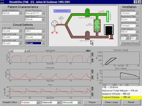 Incompetent Expiratory Valve in anesthesia machine