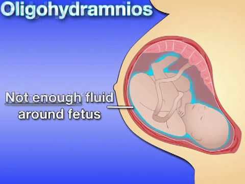 Fetal Development Week 31 (Pregnancy Health Guru) - YouTube