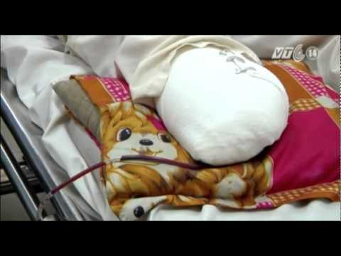 VTC14_Hai cha con lắp chân giả sau vụ tai nạn