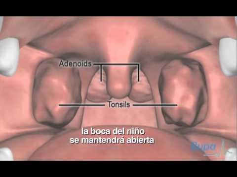 Extracción de adenoides y amígdalas