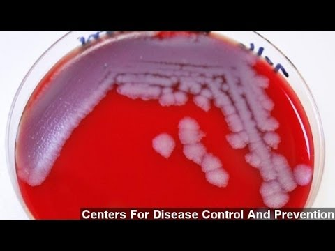 Up To 75 CDC Workers Accidentally Exposed To Anthrax