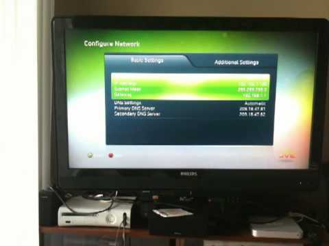 Manually assign ip address xbox one