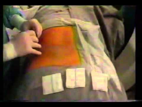 Nefrolitotomia Percutânea - Cirurgia de retirada de cálculos renais