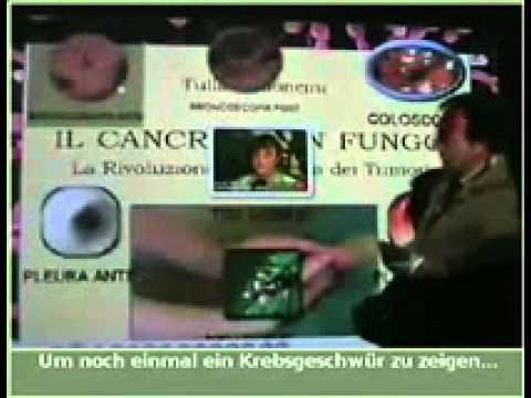 Рак лікується содою (з таємниць 'світового уряду').