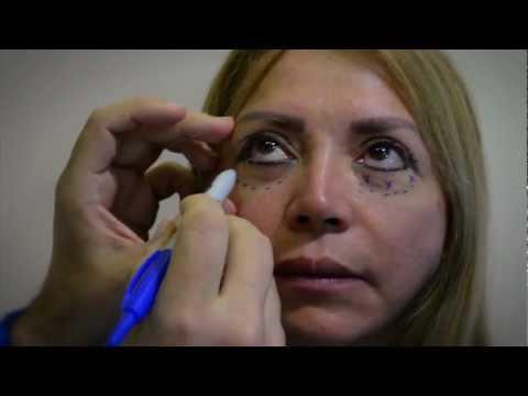 Dr. Luis Bitar - Blefaroplastia - Párpados