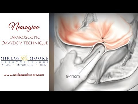 Laparoscopic Davydov Neovagina for Sugically Shortened Vagina