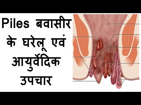 home remedies for piles treatment at home in hindi बबासीर के घरेलु इलाज