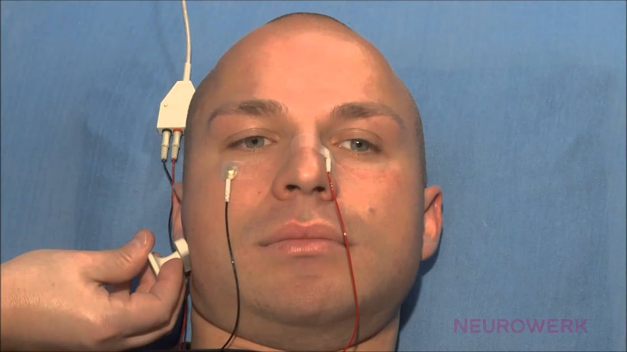 facial nerve palsy steroid treatment