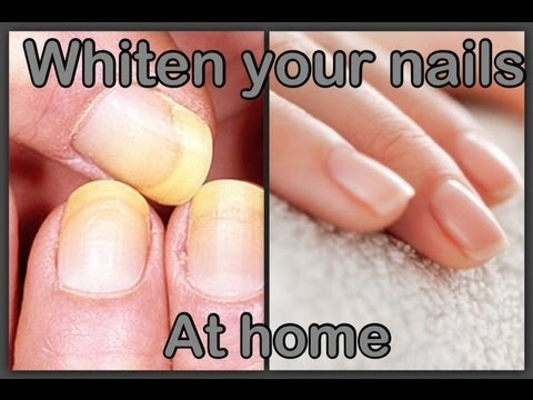 Blanquea tus unas en casa | Whiten your nails at home (easy)
