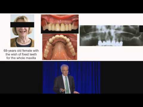 FOR.org Video Insights: Georg Watzek - Sinus Lift for Edentulous Patients