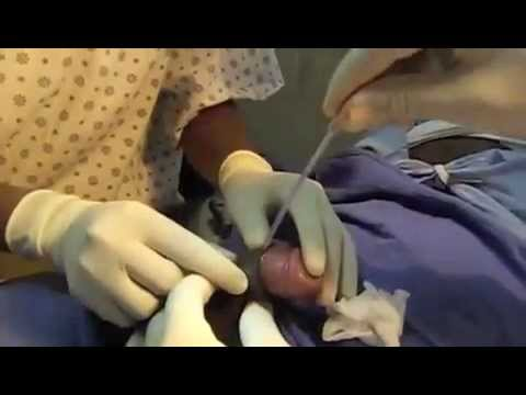 This video was used to create Adult male Gomco Circumcision with tissue ...