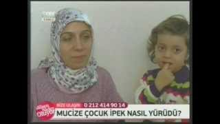 Engellere SON | Serebral Palsi | Otizm | Mikrosefali | Ankara Re