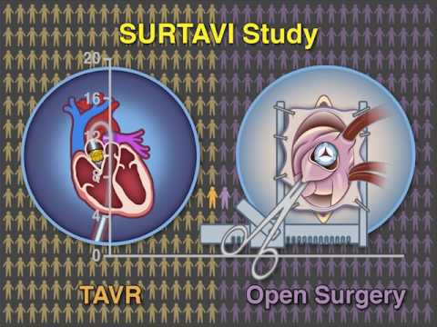 Transcatheter Aortic-Valve Replacement