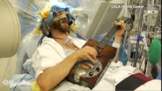 رجل يلعب الغيتار خلال عملية جراحية دماغية