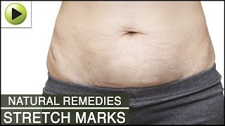 Skin Care Stretch Marks Natural Ayurvedic Home