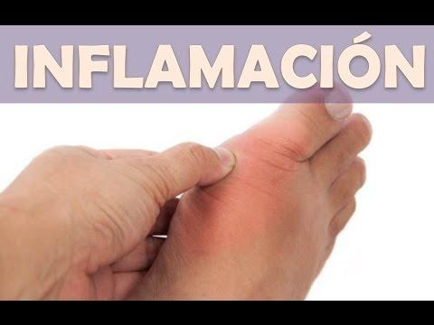 ejercicios para personas con acido urico alimentos prohibidos en el acido urico alto recetas para pacientes con acido urico