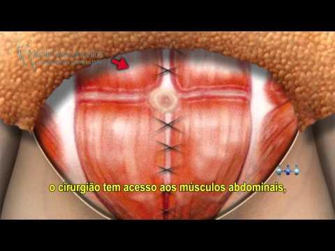 Abdominoplastia: Cirurgia Plástica Abdominal - Recife e Caruaru   Murilo Vasconcellos