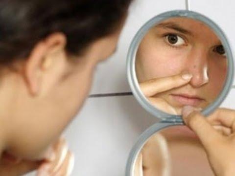 Tips Cara Alami Menghilangkan Komedo Dengan Pasta Gigi