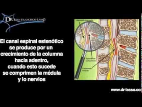 cirugia minimamente invasiva para estenosis espinal lumbar