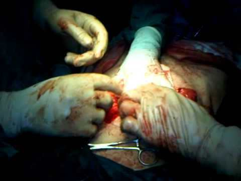 laprotomy of stab wound by dr shahid sohail in dhq jhelum part 3
