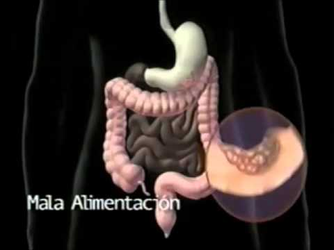 Depuracion Intestinal -  estreñimiento - la colitis - Inflamación Intestinal - colon irritable