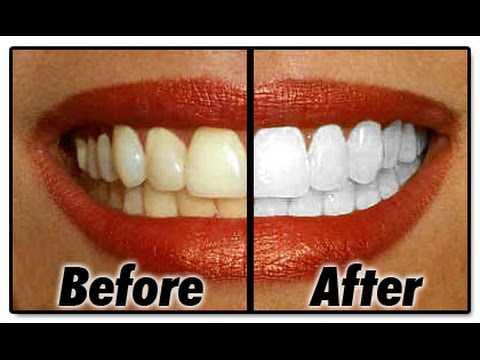 Coconut oil Pulling. Naturally whiten your teeth- oil pulling