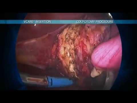 Histerectomia - Manipulador Uterino VCare