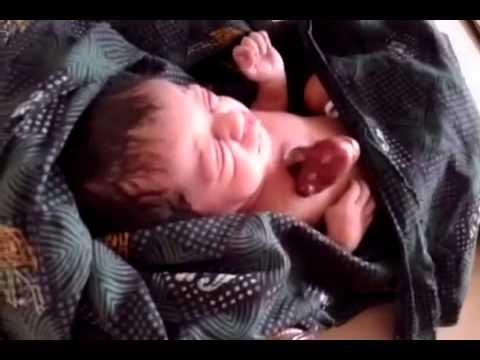 طفل يولد وقلبه خارج جسده