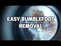 Easy non surgical removal of bumblefoot on chicken
