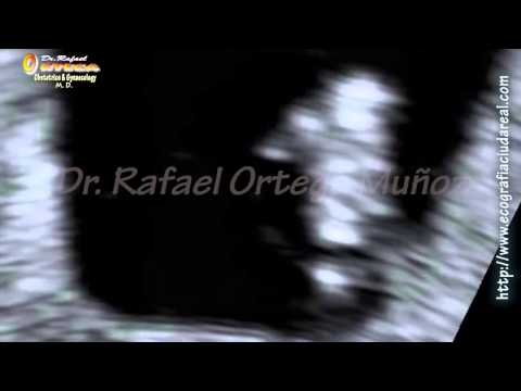 Ecografia 2D  Embarazo de  6 semanas Twin  Mellizos  embrion de 8,12 mm Dr. Rafael Ortega Muñoz
