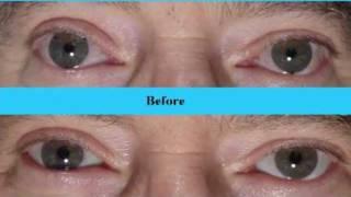 #1 Secret For White, Whiter Eyes, Part 2, Fixing BloodShot