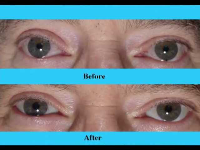 #1 Secret for White, Whiter Eyes, Part 2, Fixing BloodShot, Yellow Eye Whitening Video