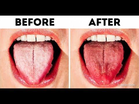 Cách trị hôi miệng từng bước hiệu quả 99%