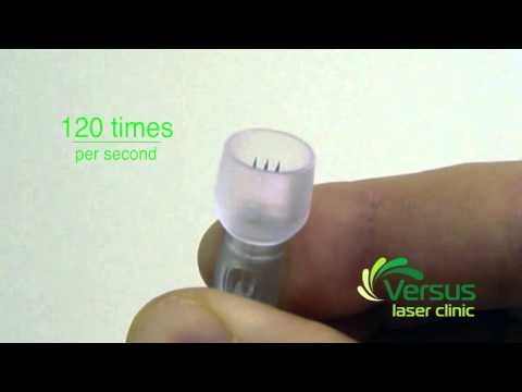 Dermastamp (Vital collagen induction therapy) demonstration