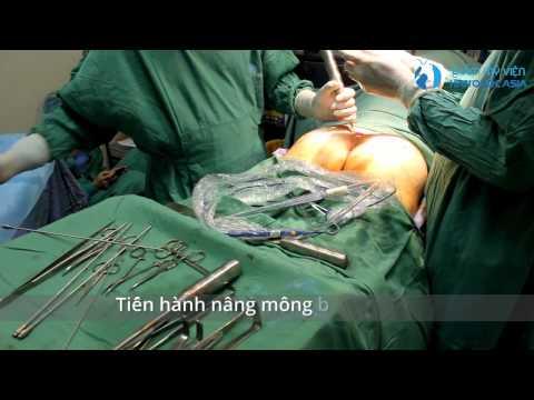 Nâng mông nội soi - TMV Hàn Quốc Asia