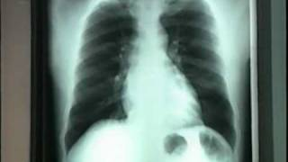 You can Prevent TB