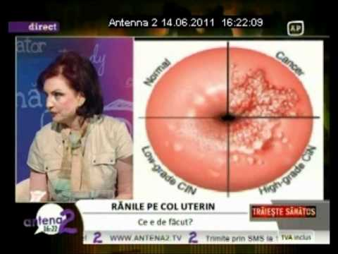 DR. ZORELA SGARBURA - ranile pe col uterin( 2)