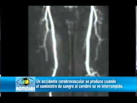 Un accidente cerebrovascular.wmv