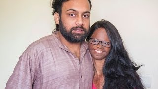 Acid Attack Victim Finds Love With Fellow Campaigner ..