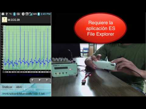 Monitor ECG Bluetooth Android