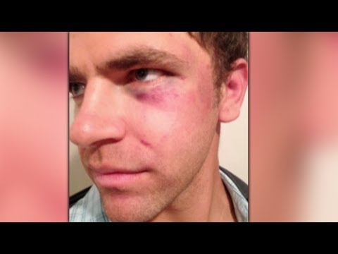 Deaf Man Beaten & Tazed By Cops - Excessive Force Or Were They Right?