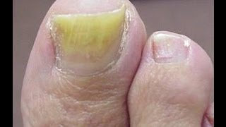 The Best Treatment For Toenail Fungus Get Rid Of Nail