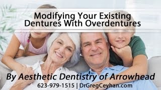 [Modifying Your Existing Dentures With Overdentures] Video