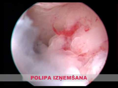 Endometrija polips (Latvian version)